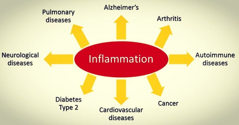 Natural Treatment for Chronic Pain and Inflammation